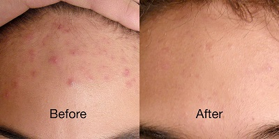 revive light therapy for acne before and after