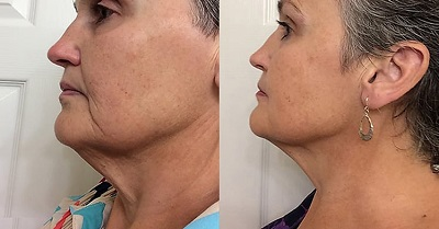 revive light therapy before and after