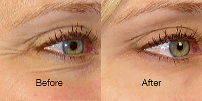 revive light therapy eye wrinkle results